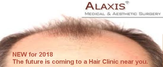 hair transplant treatment in Singapore