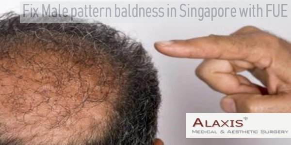 Fue Or Fuss What S The Best Type Of Hair Transplant Procedure For