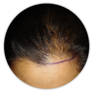 Female hair transplant in singapore